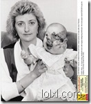 Collect picture of Cody with mum Theresa    CODY HALL, 15, from Corby, Northants born with hugely disfiguring birthmark. Her local paper raised Ј230,00 to pay for surgery, invoving 18 trips to the USA.      Pic from MEN Syndication  164 Deansgate  Manchester M3 3RN syndication@men-news,co.uk